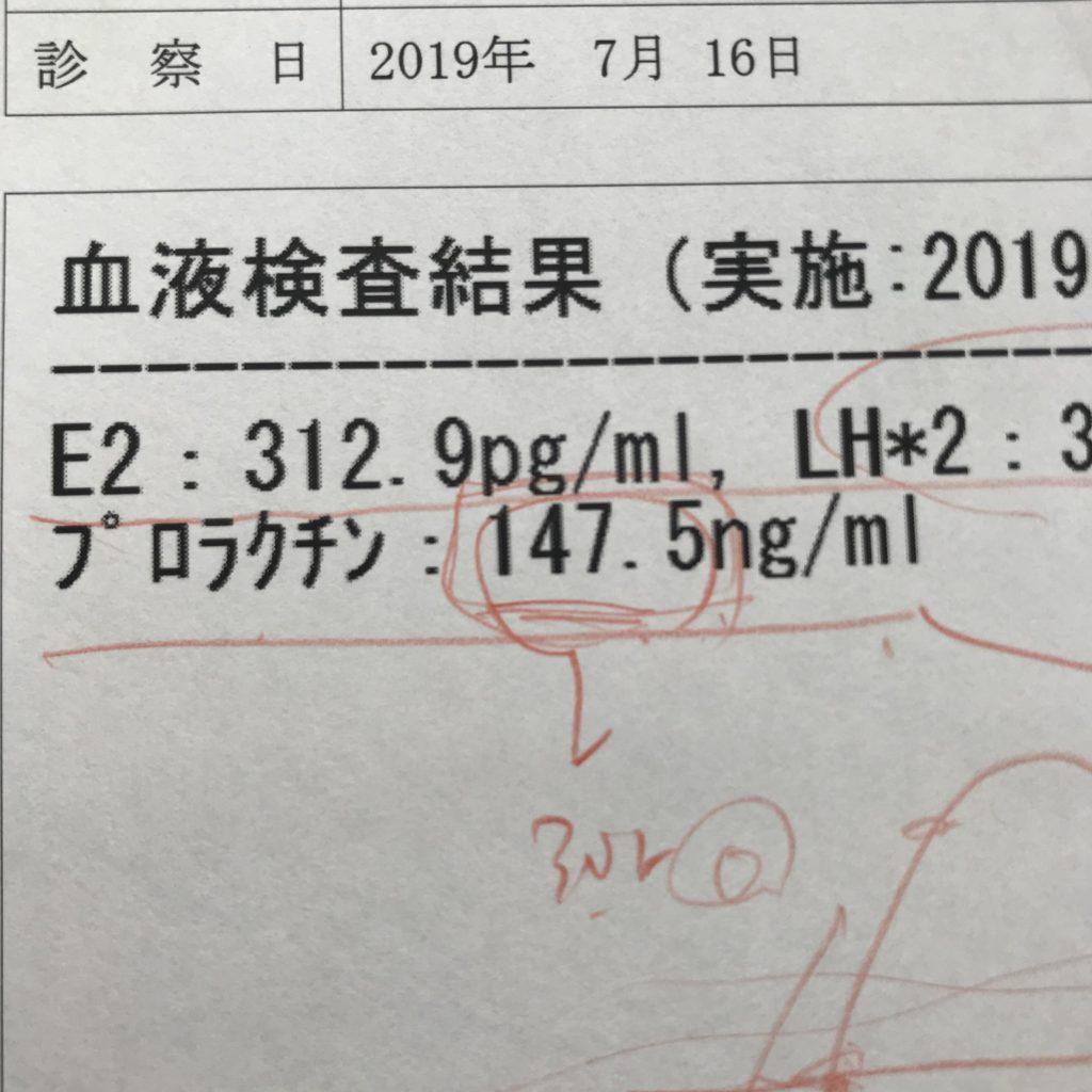 胃薬 高プロラクチン血症